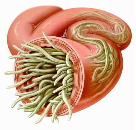 roundworm.jpg