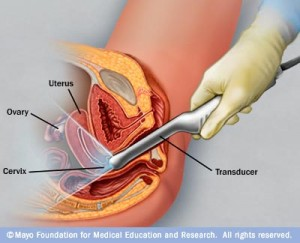 vaginal_ultrasound